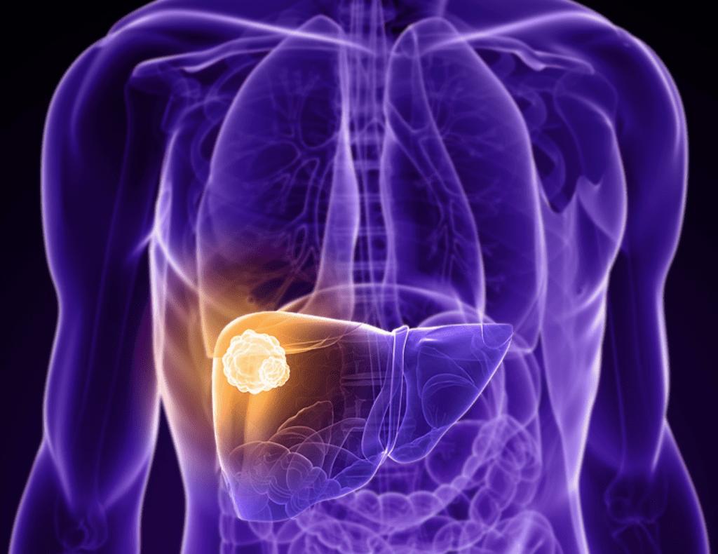 Interactive Body Map Understanding Cancer Iogt International